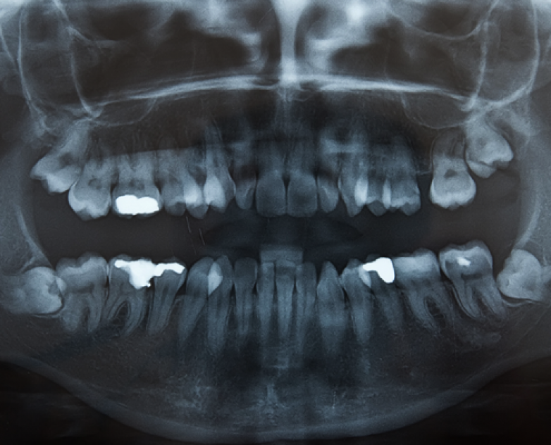 Wisdom Teeth Removal picture